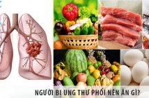 Người bị ung thư phổi nên ăn gì? Nên kiêng ăn gì?